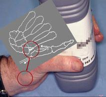 Docteur bleton chirurgie du membre sup rieur - Fracture main coup de poing ...